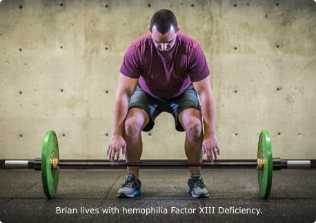 Brian, who lives with Factor 13 deficiency, is preparing to lift a barbell with weights