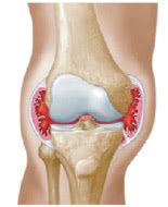 Changing Hemophilia illustration depicting a swollen knee joint that may become so large that it's called cantaloupe knee